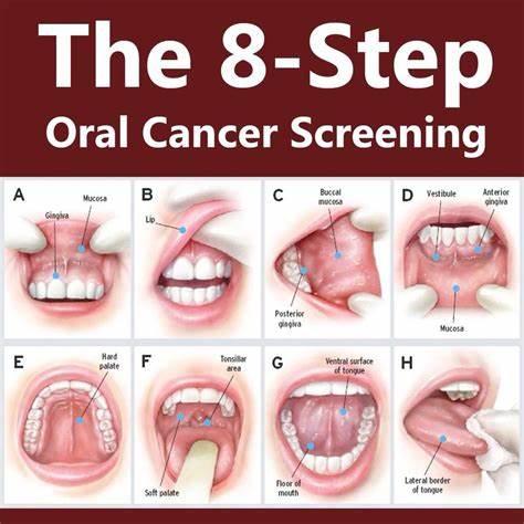 Screening Malattie Neoplastiche del Cavo Orale